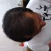 平成にハゲて 平成末に毛が生え 令和になった今も毛が生えてます