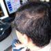 育毛は月三千円からでも可能 床屋のマスターも生えたと認めた育毛法